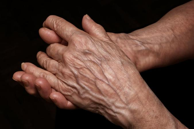 senior-person-with-thin-skin-on-their-hands.jpg